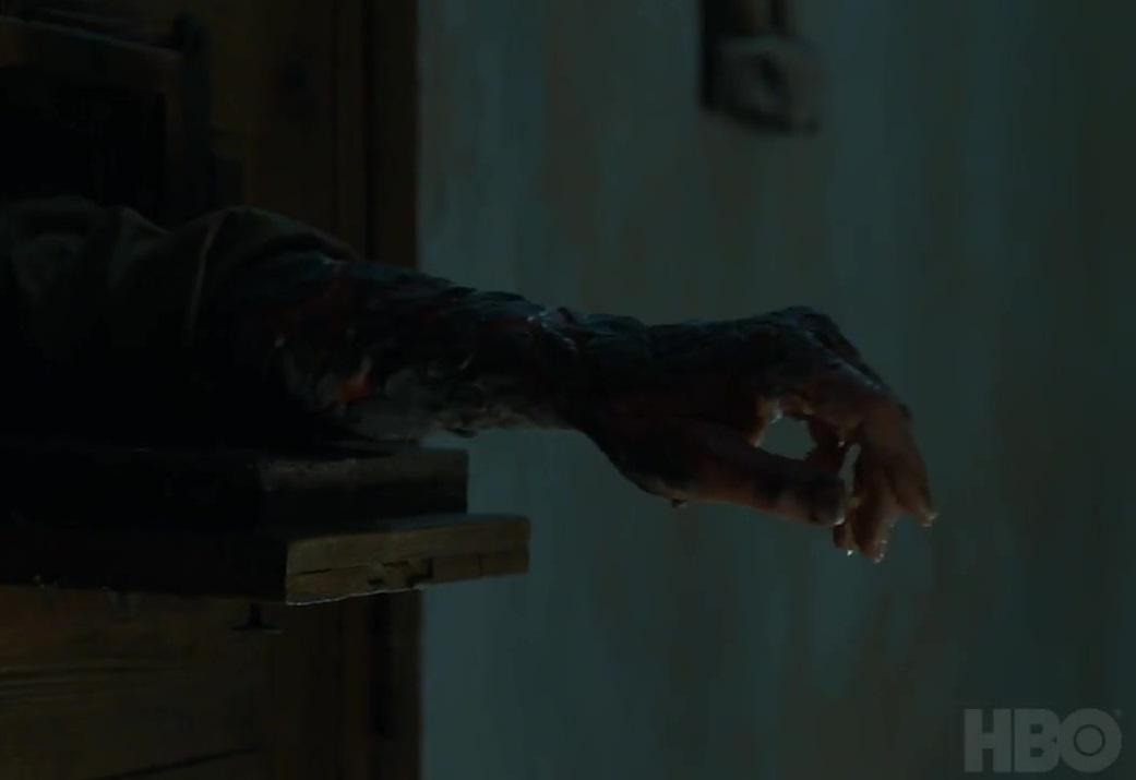 Jorah's arm